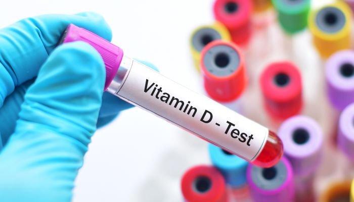 saiba como manter saudável o nível de vitamina d