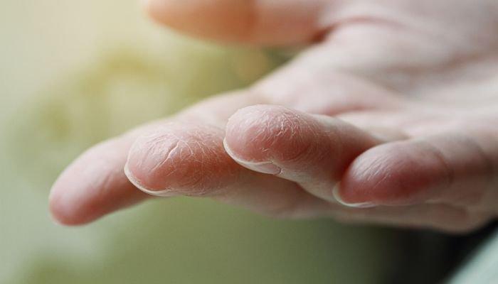 alimentos bons para a pele ressecamento